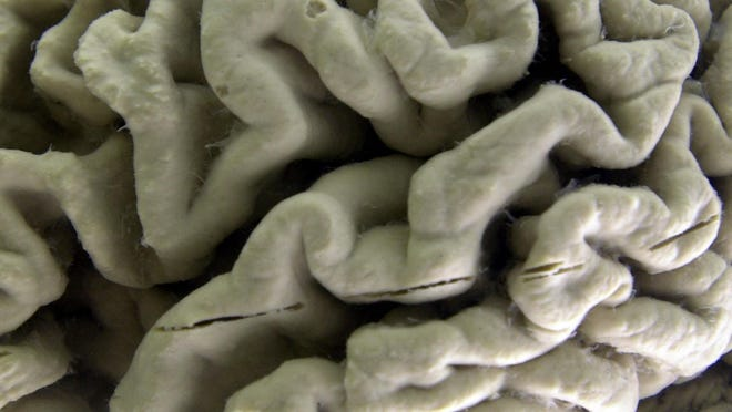 A section of a human brain with Alzheimer's disease is on display at the Museum of Neuroanatomy at the University at Buffalo, in Buffalo, N.Y.