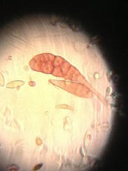 A snowshoe-shaped fungus spore (Alternaria) is visible