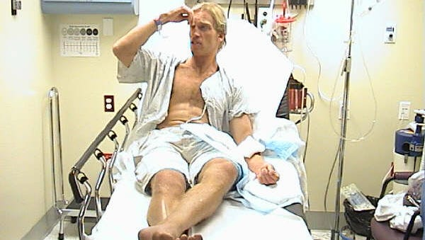 Local artist Damien Share at Health First's Holmes Regional Medical Center in 2003 after a tiger shark encounter in Melbourne Beach.