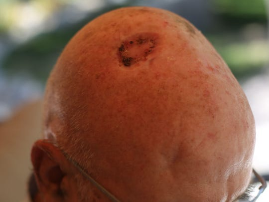 Jim Gross, of Palm Springs, had skin cancer removed from his scalp. Photo taken on Friday May 26, 207 in Palm Springs. Gross didn't take care of his skin from the sun until he got skin cancer on his chest, nose and scalp. Now he uses sun screen and hats when  outdoors.