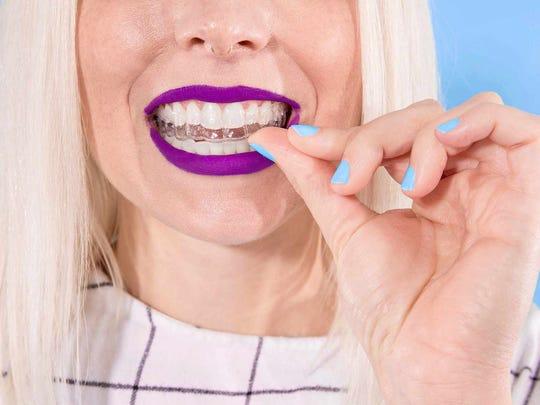 A woman putting on her SmileDirectClub dental aligner.