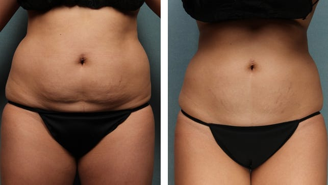 The patient in these photos achieved these results after three months. Four cycles of treatment were performed on the abdomen and two cycles of treatment on each flank.