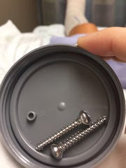 After a leg injury, Standard-Times reporter Krista Johnson had two plates and 11 screws implanted. The two in the picture were removed, while the remainder will likely remain for the rest of her life.