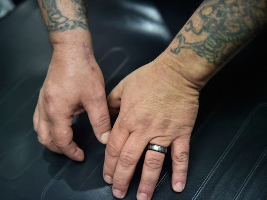 Eric Von Dar's shows his scarred right hand that he had to have surgery on due to a recent car crash in which he injured his hand and wrist.
