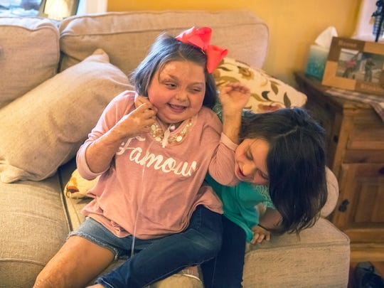 Reese Burdette and her sister, Brinkley Burdette, play around and tickle each other on the couch inside their home on Thursday, Sept. 29, 2016 in Mercersburg, Pa. Reese says her little sister helped her a lot while she was away from school recovering from severe burns she received in a house fire.
