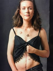 Lindsey Bates Motley bared her surgical scars in the Colondar, a magazine and calendar that features portraits and stories of young colon cancer survivors.