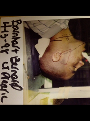 Bernardo Barnhart while going through Hodgkins Lymphoma.