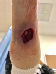 A trauma wound on Vietnam veteran Don Ruch's right