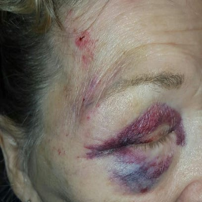 Family says Mesa grandma assaulted by officers; police reviewing incident