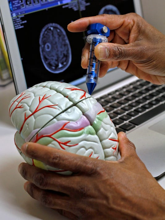 0825 rch skybox brain