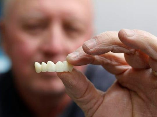 Kevin Gray, dental lab technician, holds a finished