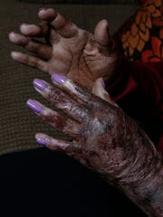 Francine Wallace wears purple nail polish on her badly burned hands. Purple is the symbolic color of domestic violence awareness and, coincidentally, the same color she was wearing when her boyfriend tried to kill her by fire in June 2014.