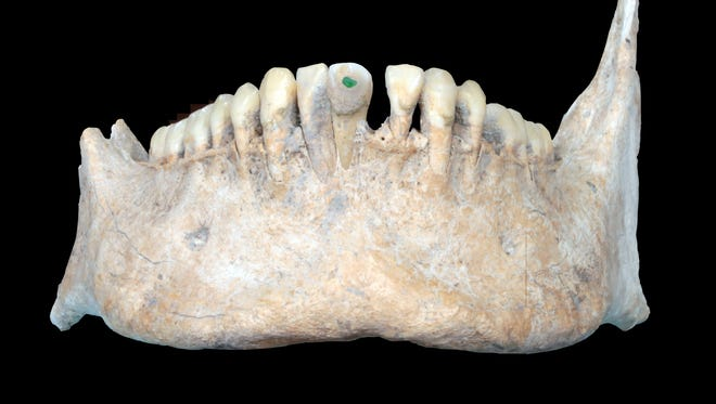 The lower jawbone is among the bone fragments recovered from a 1400-year-old mass grave in the former Mayan city Uxul. Scientists at the University of Bonn discovered the mass grave, which supports that the depictions in Mayan art of the dismemberment of enemy prisoners of war were actually practiced.