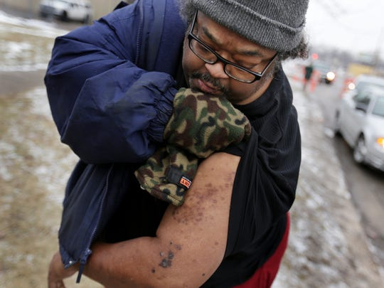 Flint resident Robert Jackson, 54, shows of some marks left on his arm that he believes are the result of drinking contaminated Flint tap water at Flint Fire Station 3 in Flint, on Thursday, Jan. 21, 2016.