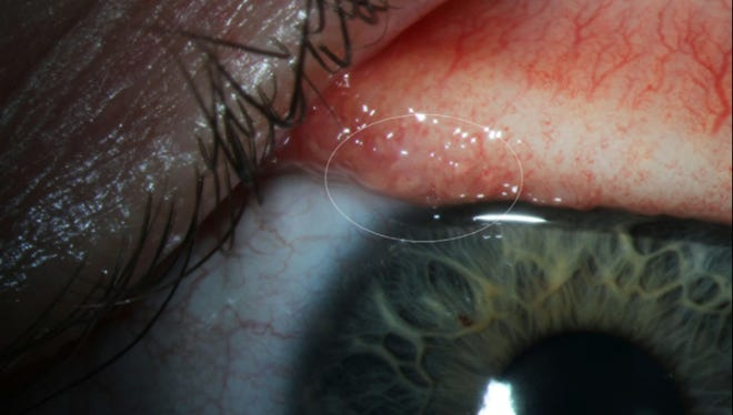 A transparent eye worm on the surface of a patient's conjunctiva.