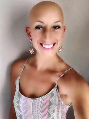 Lindsay Walter, 26, was diagnosed with alopecia universalis at age 2.
