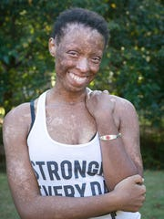Khaliah Shaw broke out in blisters all over her body