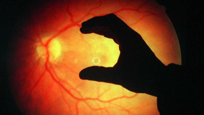 An eye doctor defines the area of a patient's retina, which was destroyed by macular degenaration.