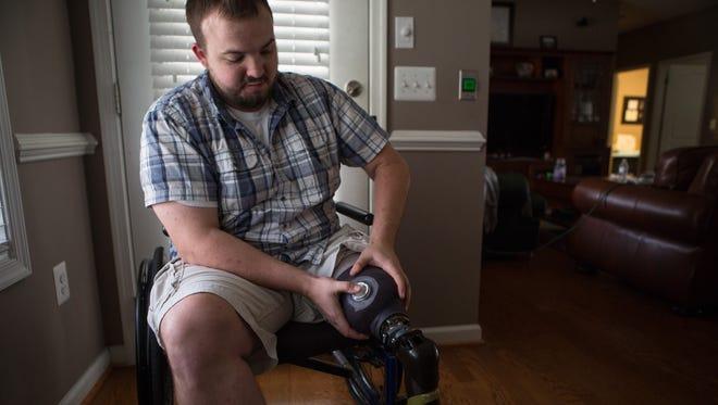 Kenny Lyon demonstrates how he detaches his prosthetic leg in his Fredericksburg, Va. home on Wednesday, Nov. 4, 2015.