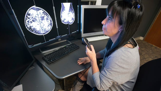 Dr. Joanne Trapeni uses a dictation device when studying a mammogram Monday November 9, 2015 at the WellSpan's Women's Imaging Center in York Township