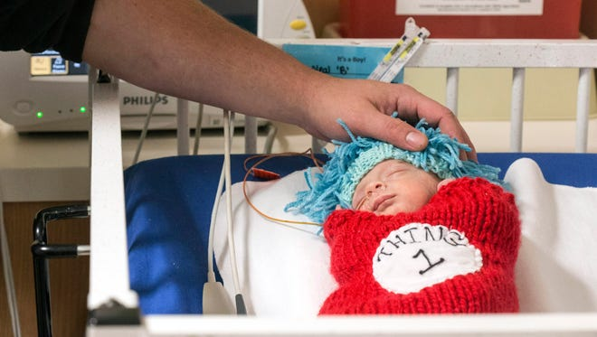 Holden Neal has a blue wig placed on his head by his mother Jacqueline Neal during Halloween in the NICU at Norton Women's & Kosair Children's Hospital. 10/26/16