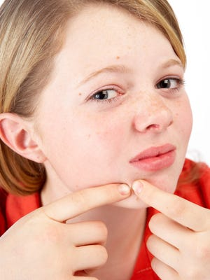 Acne affects about 85% of teens and 12% of adult women but remains widely misunderstood, dermatologists say.