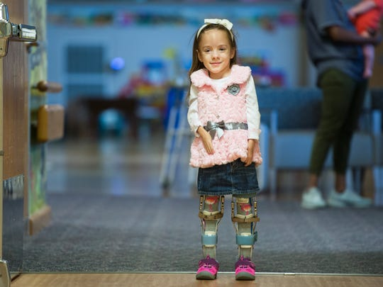 Brayden Dame, 6, stands on her own at Shriners Hospitals for Children in Greenville on Friday, November 17, 2017. Dame has Arthrogryposis Multiplex Congenita and just started walking on her own in September.