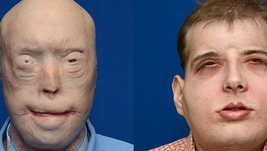 This combination photo provided November 16, 2015 by the NYU Langone Medical Center shows face transplant patient Patrick Hardison before, left, and after his surgery. A New York medical center said November 16, 2015 it had performed the most complex and comprehensive face transplant to date, performed on a 41-year-old first responder horribly disfigured in 2001.
