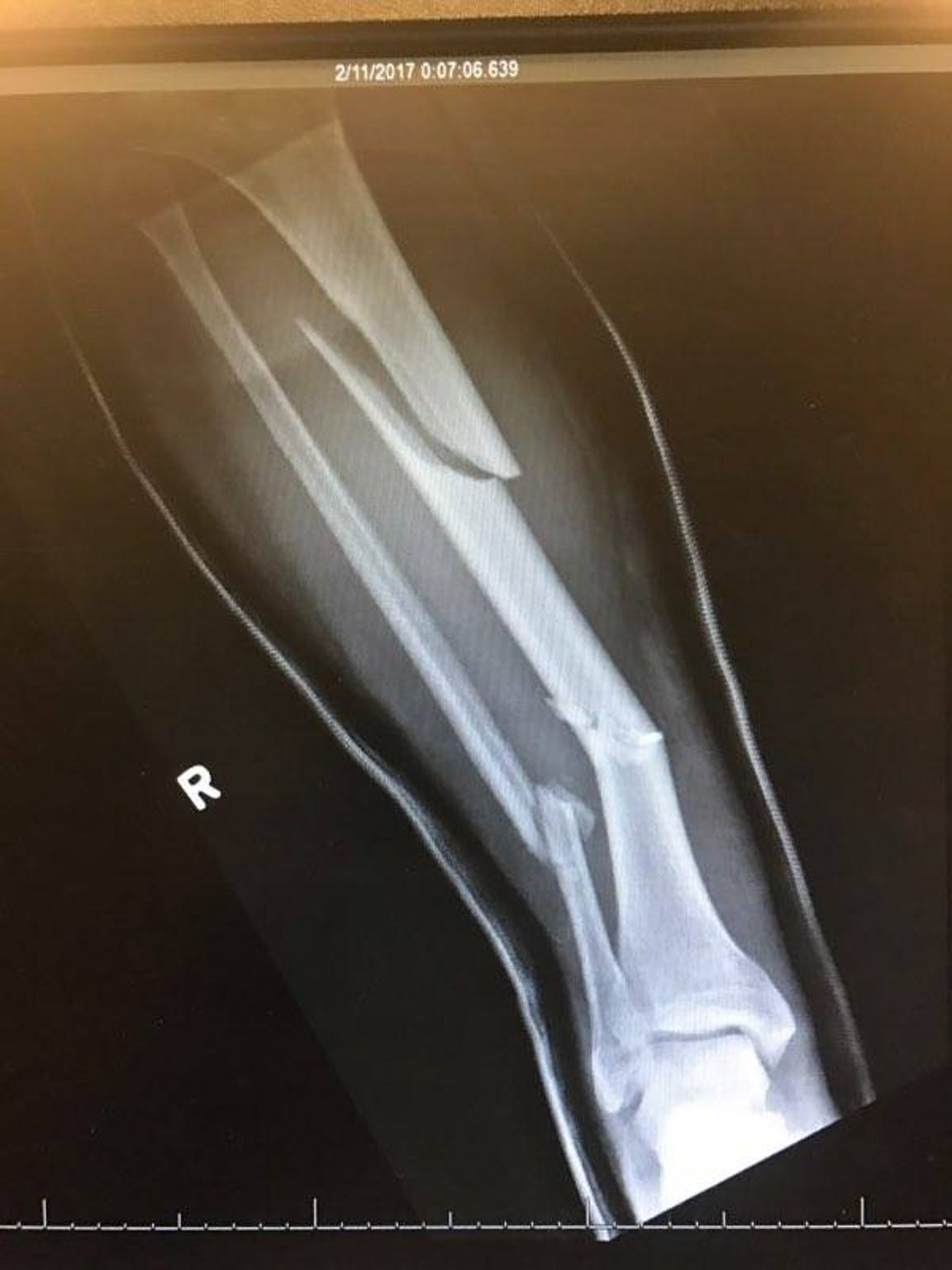 An X-ray of Alan Arnette's right leg after his fall on Twin Sisters.