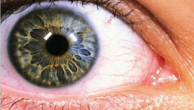 The iris scanner detects more than 250 identifiers in each eye, according to officials at the iris scanning technology company.