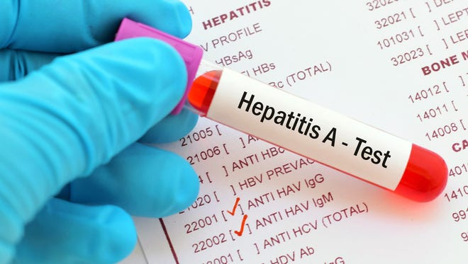 An outbreak of hepatitis A in Michigan has been occurring since August 2016, affecting more than 800 people and killing more than 25.