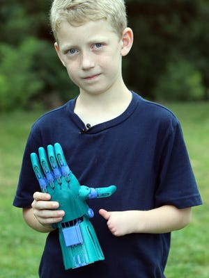 Luke Dennison, 8, of Falmouth, was born without fingers on his left hand, a congenital abnormality called symbrachydacyly. Luke's parents, Gregg and Stephanie, connected with e-nable, a global network working to create and donate hand devices to those in need.