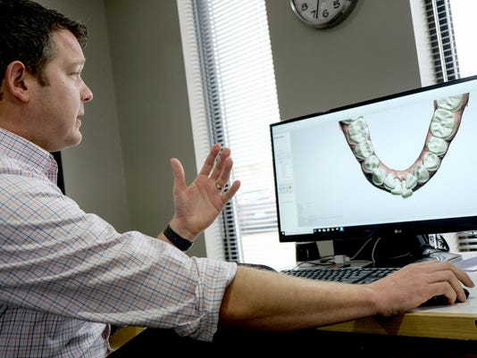 Online braces lead to legal fights between dentists entrepreneurs think diy braces will fix your smile startup says yes orthodontists say think again solutioingenieria Images