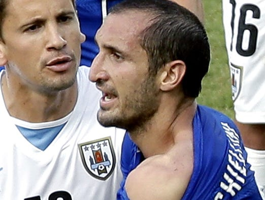 Italy's Giorgio Chiellini displays his shoulder showing apparent teeth marks after colliding with the mouth of Uruguay's Luis Suarez during the group D World Cup soccer match between Italy and Uruguay at the Arena das Dunas in Natal, Brazil, Tuesday, June 24, 2014.