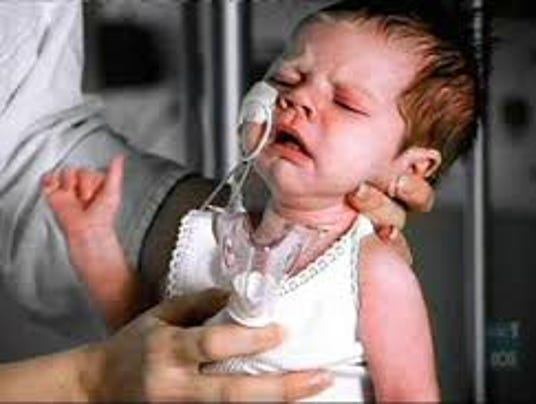 baby whooping cough