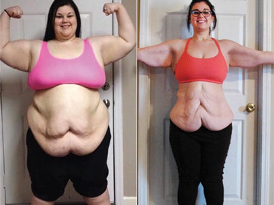 Fat Loss With Arimidex