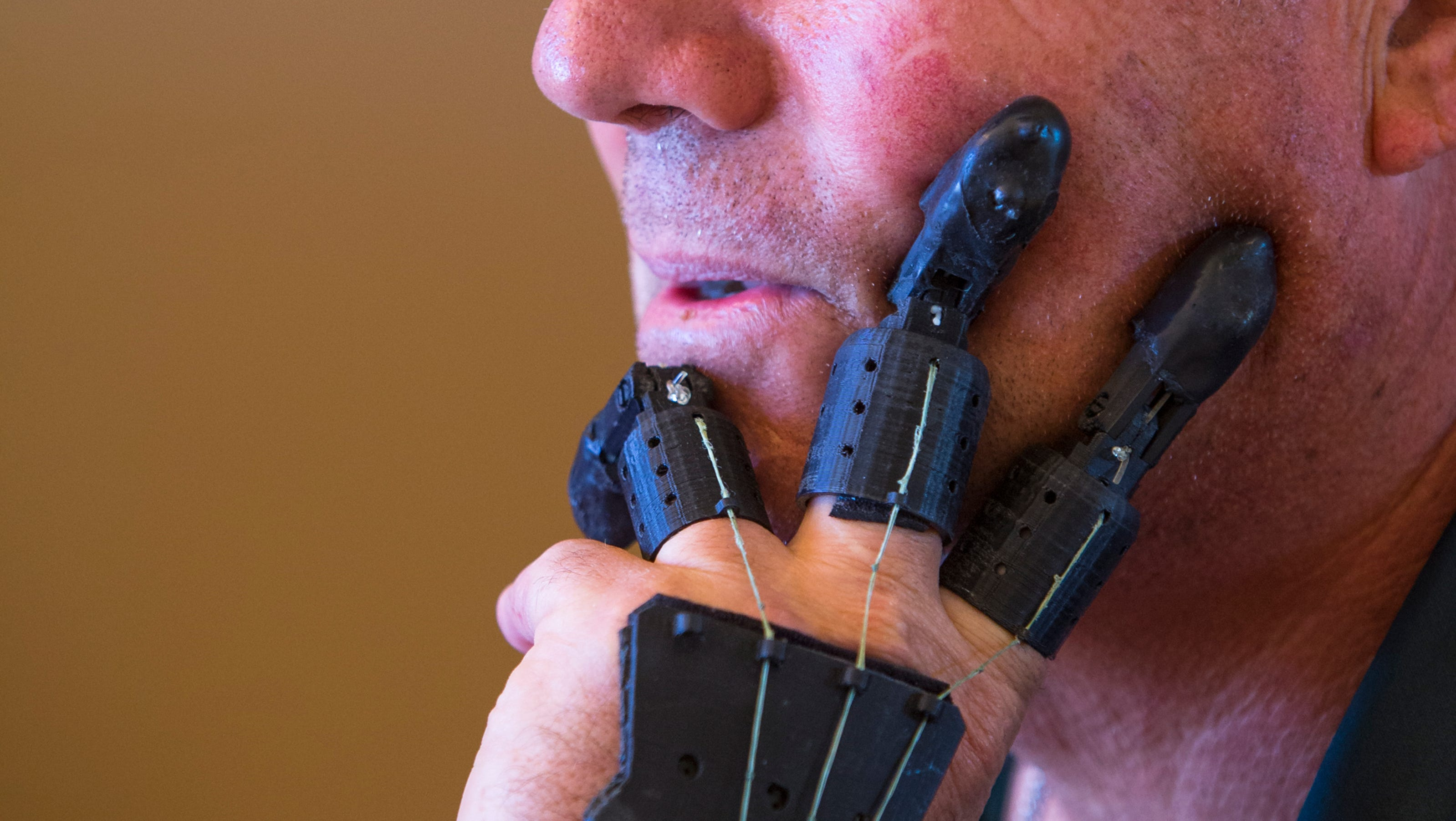 finger prothesis Dan didrick is the inventor of x-fingers, stainless steel prosthetic fingers in which each digit contains 23 moving parts or more for those without residual fingers.