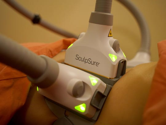 Four laser attachments connect to a brackets that lay over problem areas on a patient being treated with the SculpSure at Aesthetic Plastic Surgery.