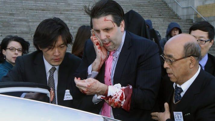 Injured U.S. Ambassador to South Korea Mark Lippert