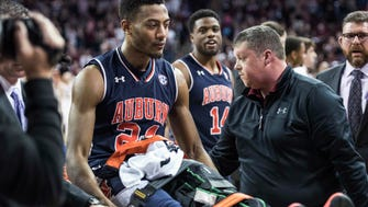 Auburn forward Anfernee McLemore (24) is carted off the court after an injury during the first half of the team's NCAA college basketball game against South Carolina on Saturday, Feb. 17, 2018, in Columbia, S.C. South Carolina defeated Auburn 84-75.