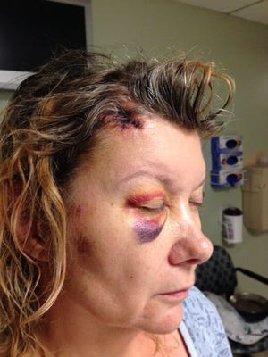 """Martha """"Marti"""" Winkler said she received these injuries after a Phoenix police officer arrested her outside a convenience store in July 2014."""