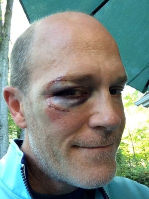 The author after his bicycle encountered a squirrel.