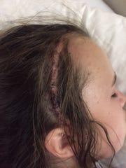 The scar on Emma Johnson's skull.