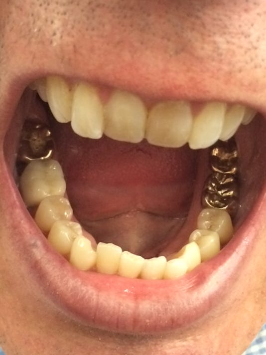 Gold Dental Crowns The Best Photos Coil And Crown