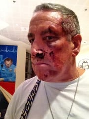 Rock Peters, of Hockessin, says he was stopped by police