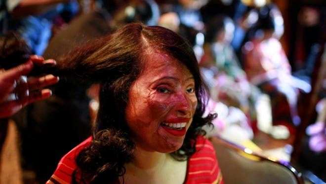 A Bangladeshi acid attack survivor gets her make up applied during the event 'Beauty Redefined' in Dhaka, Bangladesh.