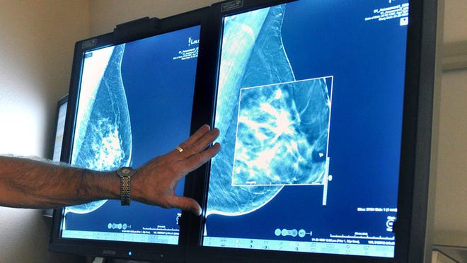 A radiologist compares an image from earlier, 2-D technology mammogram to a new 3-D mammogram.