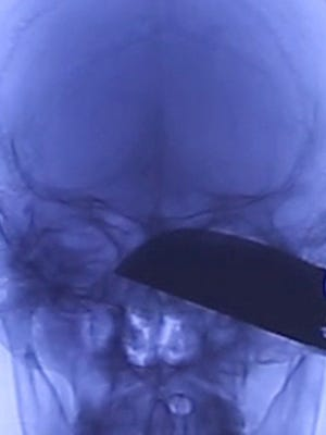 This image, taken from video supplied by Guam Regional Medical City, shows how deeply the knife was embedded in the head of a man stabbed in Dededo on Jan. 14, 2017.