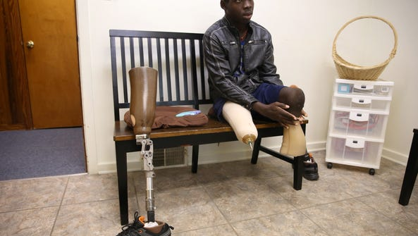 Devin Richards, 18, attaches his new prosthetic legs