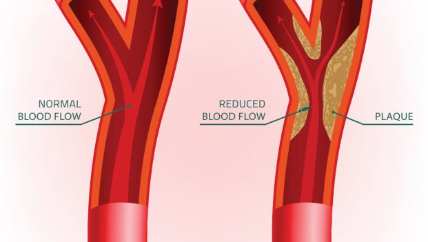 Blood Vein with and without plaque
